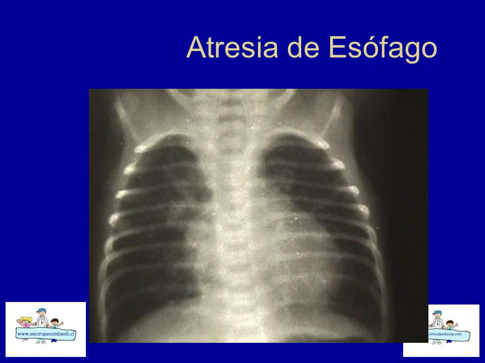 Atresia de Esófago