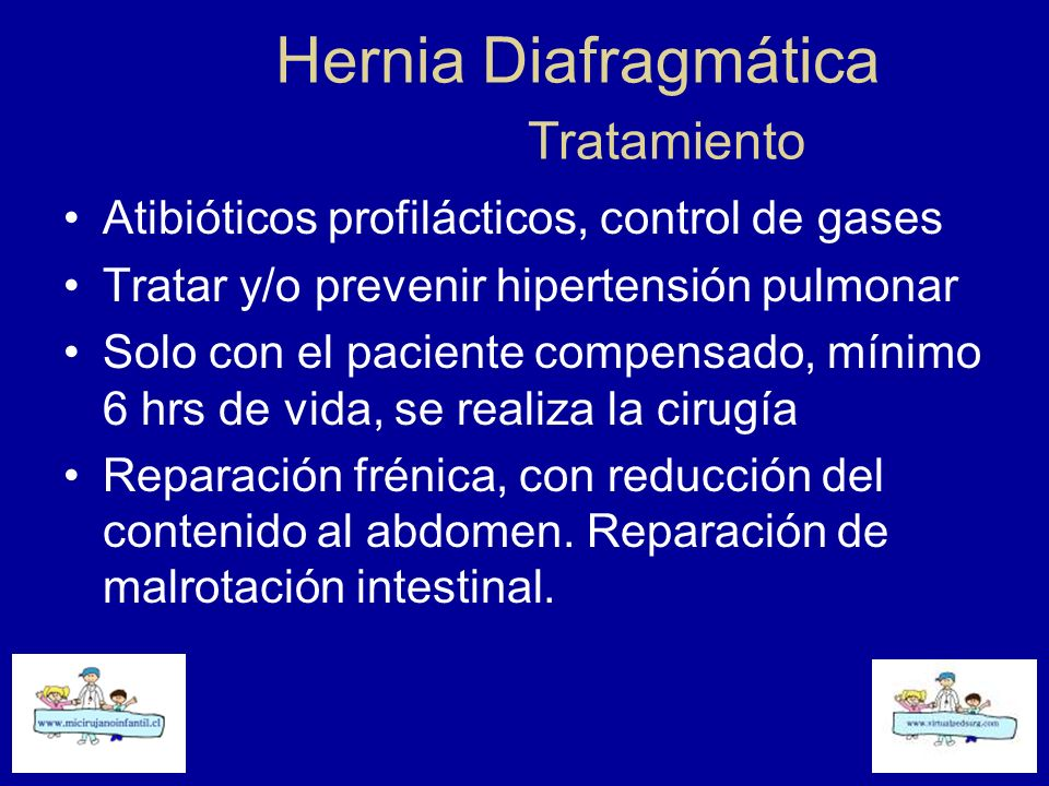 Hernia Diafragmática Tratamiento