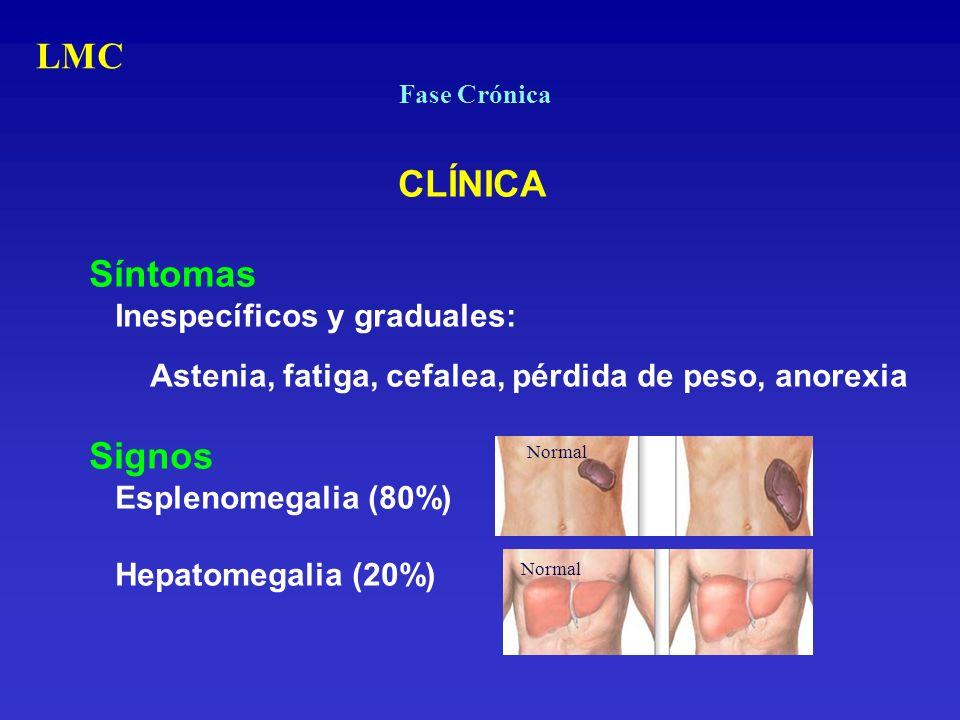 LMC Síntomas Signos Inespecíficos y graduales: