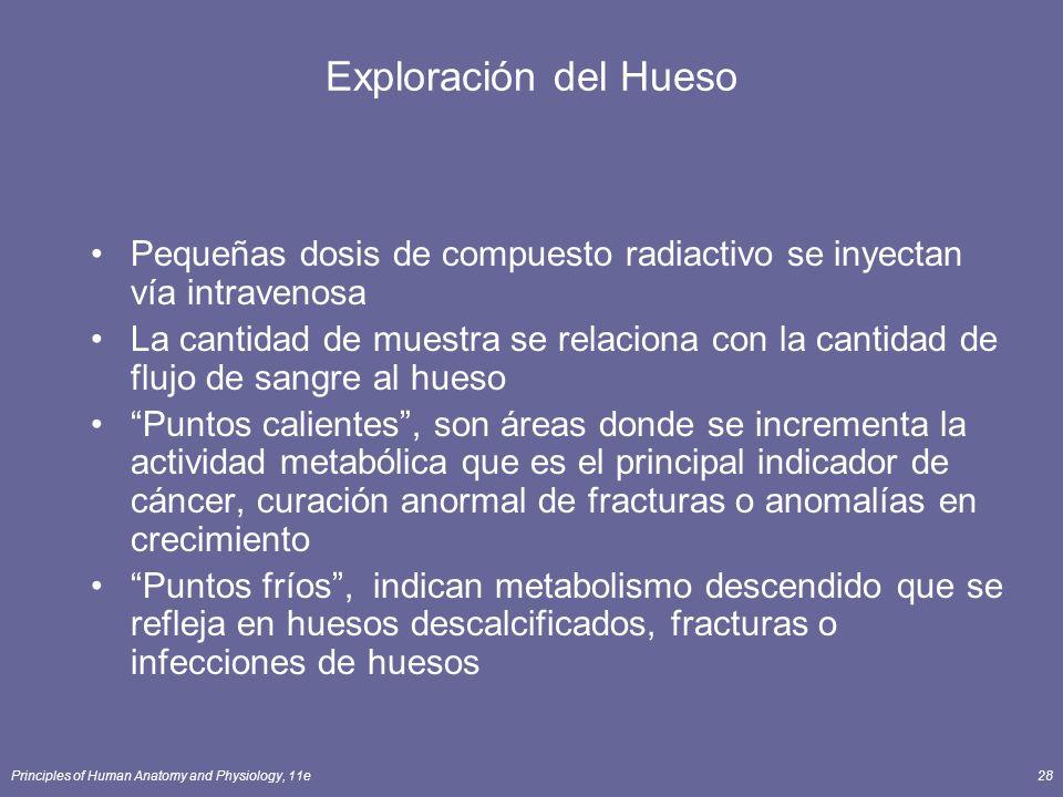 Exploración del Hueso Pequeñas dosis de compuesto radiactivo se inyectan vía intravenosa.