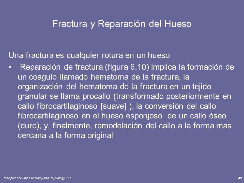 Fractura y Reparación del Hueso