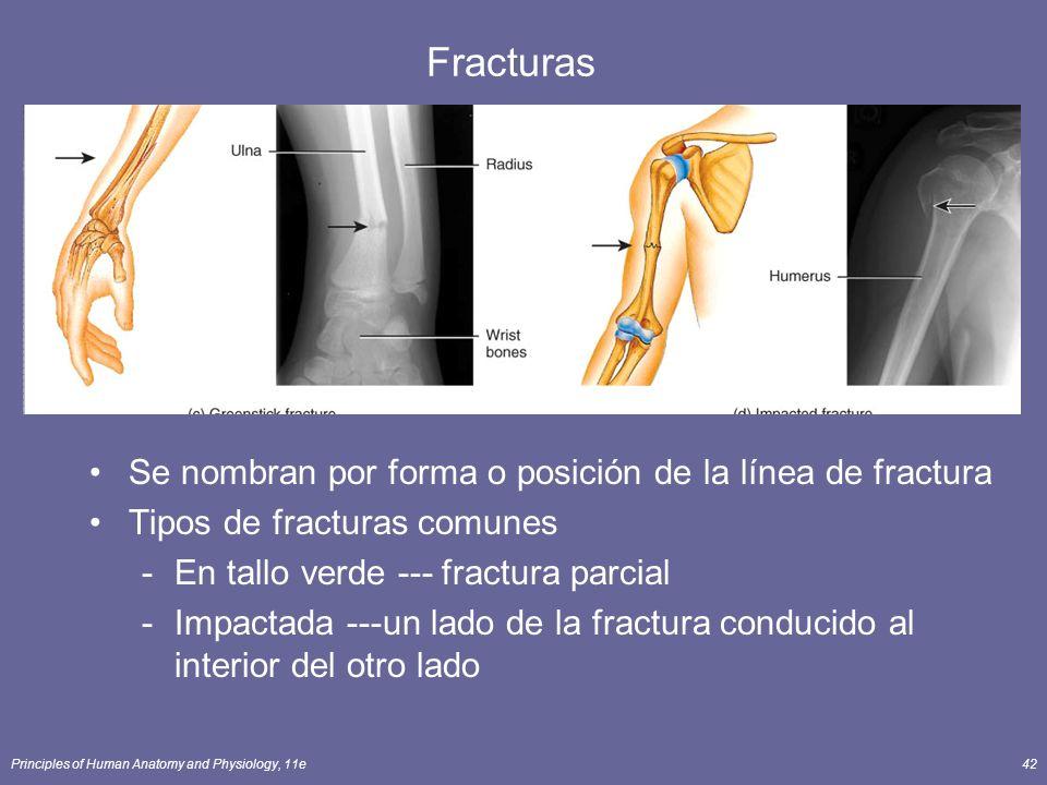 Fracturas Se nombran por forma o posición de la línea de fractura