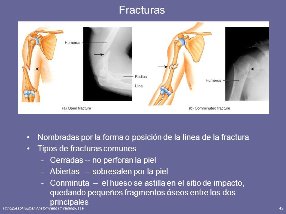 Fracturas Nombradas por la forma o posición de la línea de la fractura