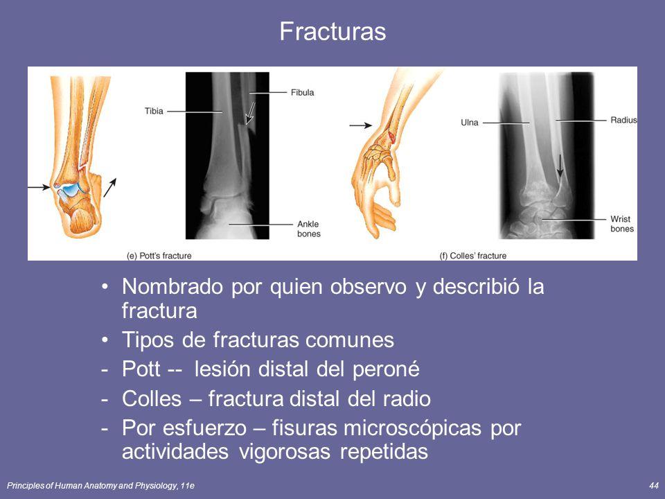 Fracturas Nombrado por quien observo y describió la fractura