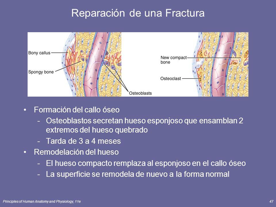 Reparación de una Fractura