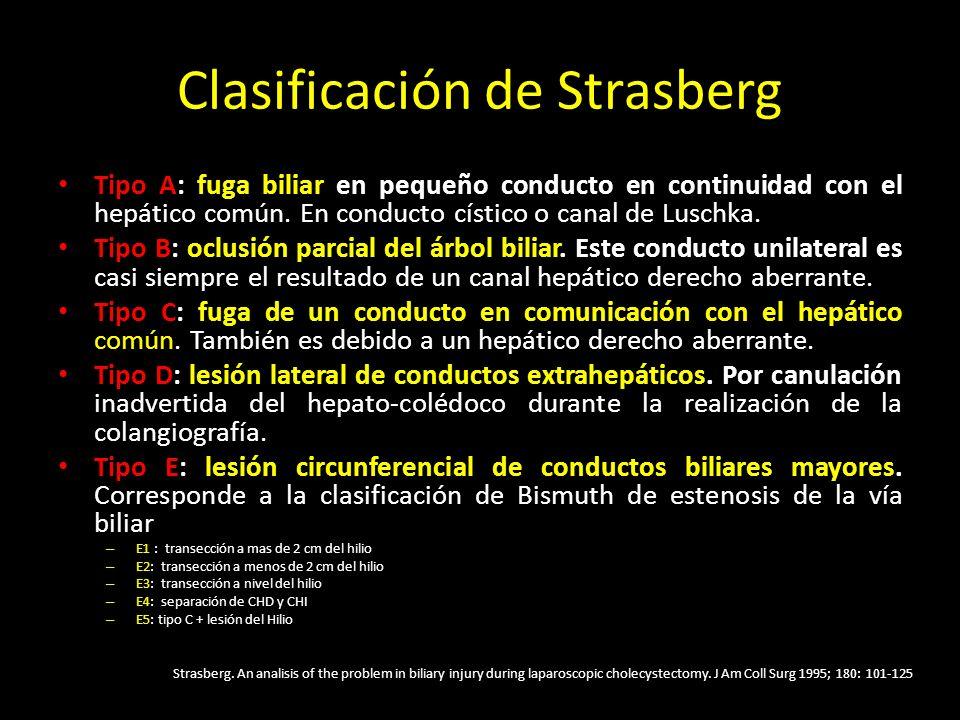 Clasificación de Strasberg