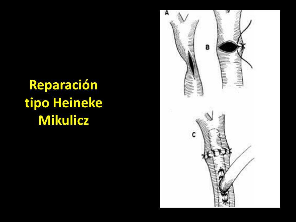 Reparación tipo Heineke Mikulicz