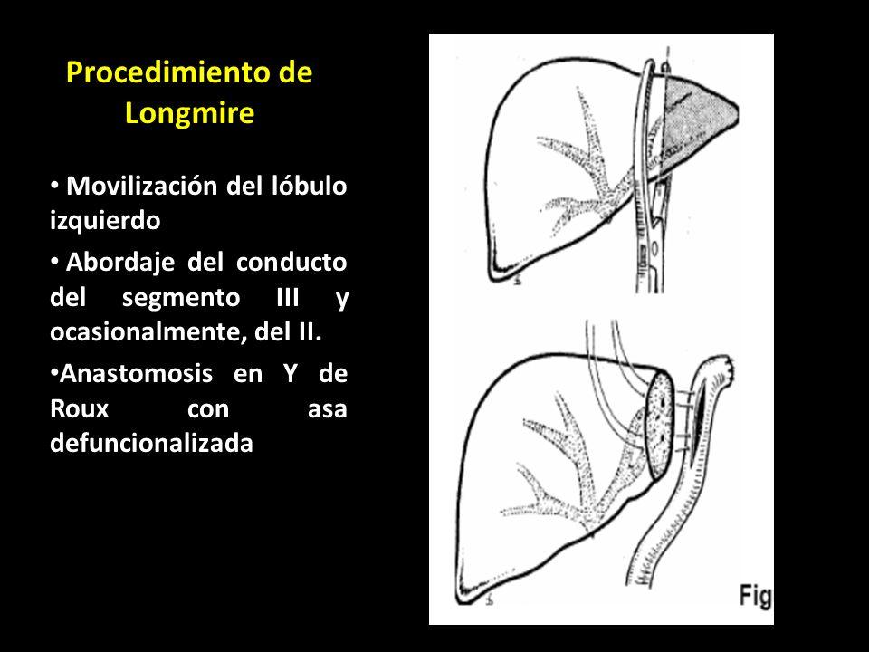 Procedimiento de Longmire
