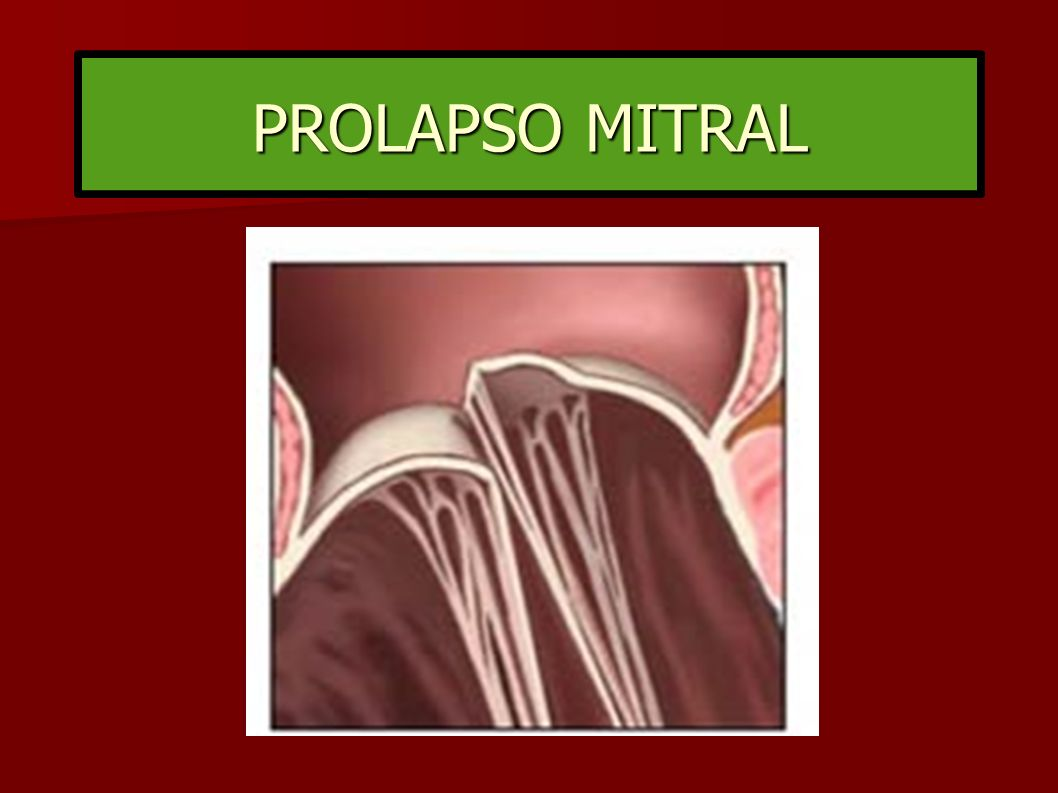 PROLAPSO MITRAL