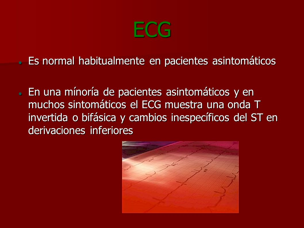 ECG Es normal habitualmente en pacientes asintomáticos