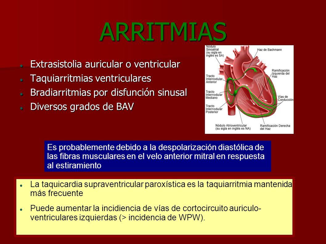 ARRITMIAS Extrasistolia auricular o ventricular