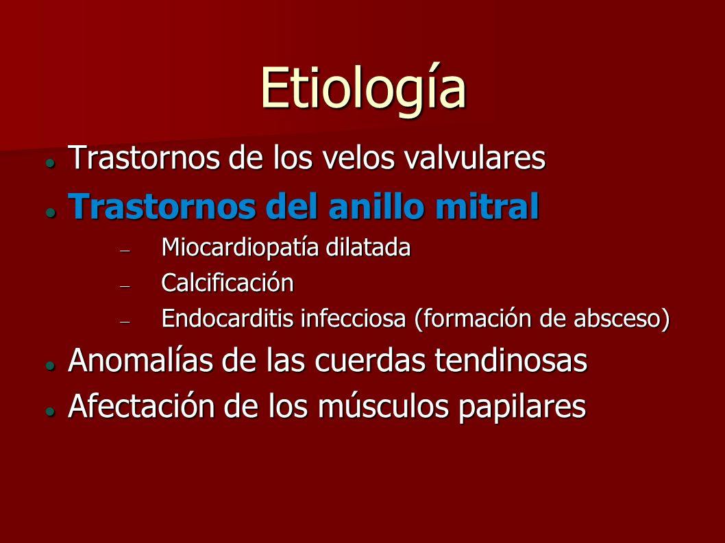 Etiología Trastornos del anillo mitral