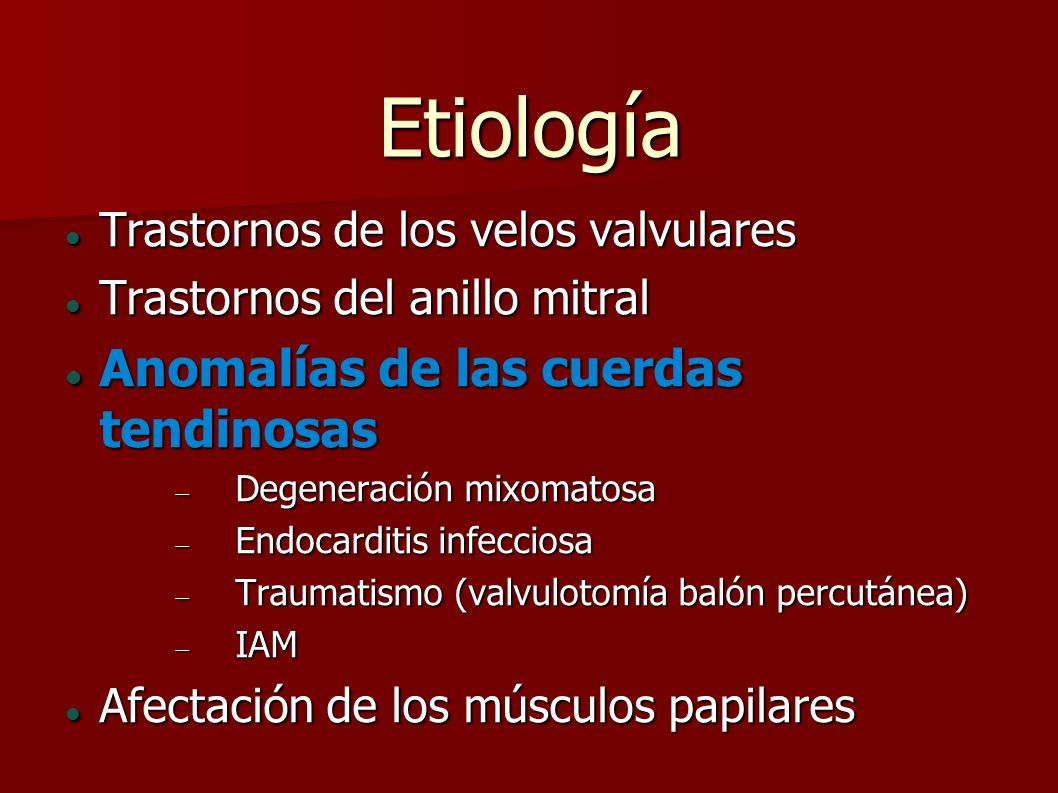 Etiología Anomalías de las cuerdas tendinosas