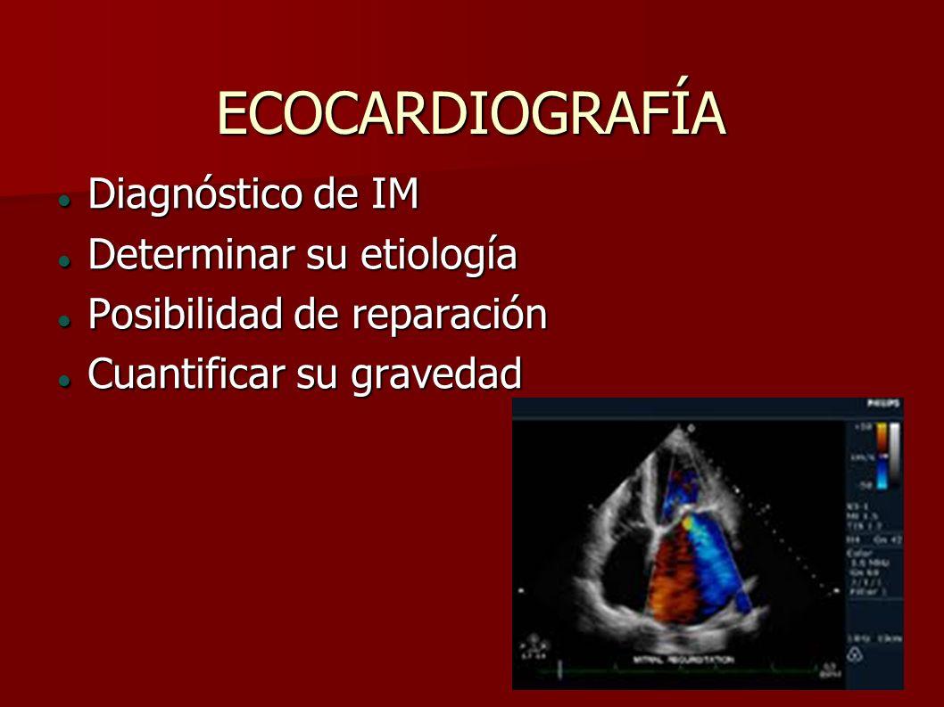 ECOCARDIOGRAFÍA Diagnóstico de IM Determinar su etiología