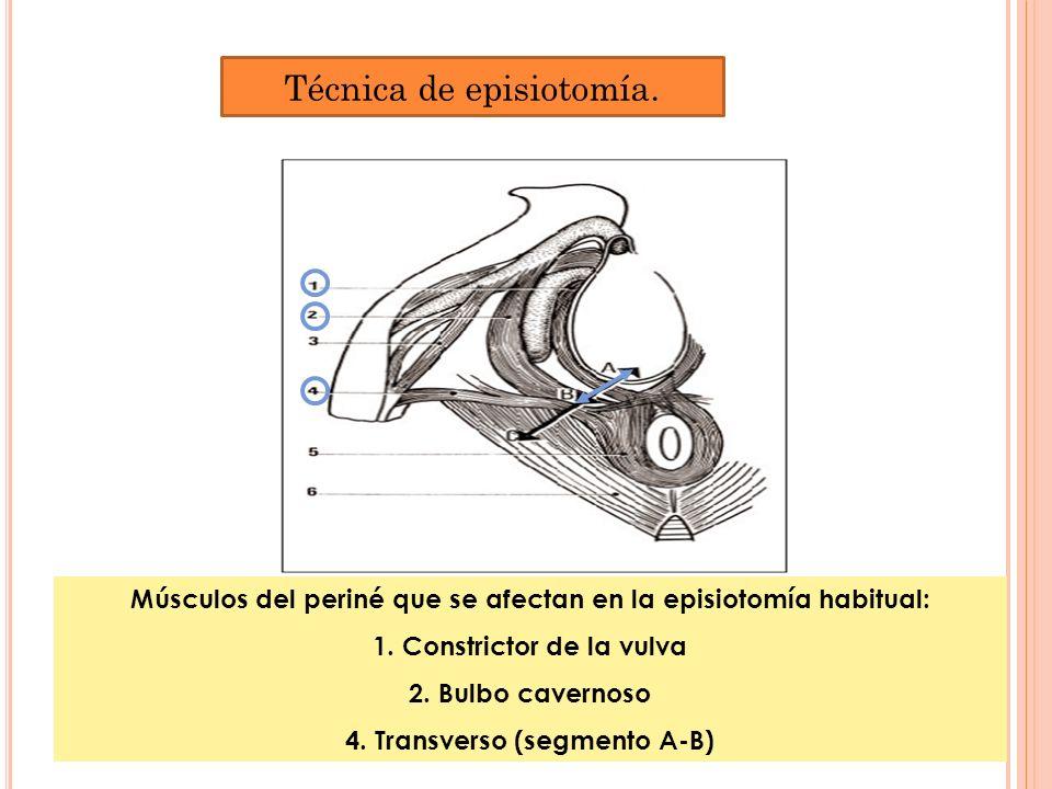 Técnica de episiotomía.