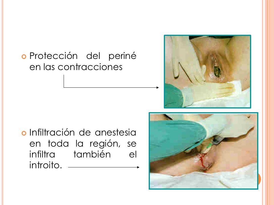 Protección del periné en las contracciones