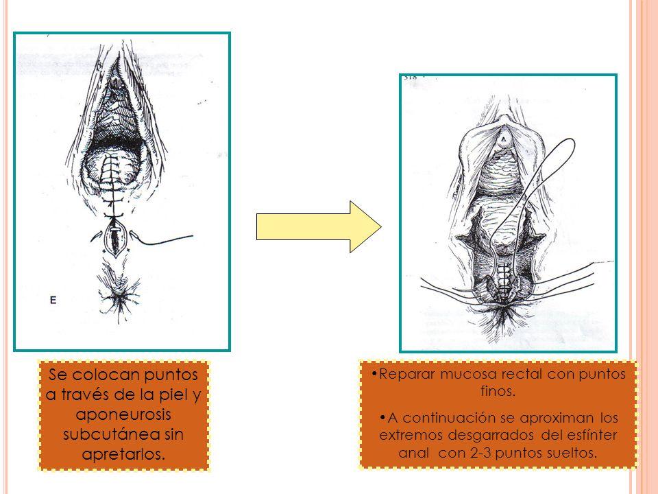 Reparar mucosa rectal con puntos finos.