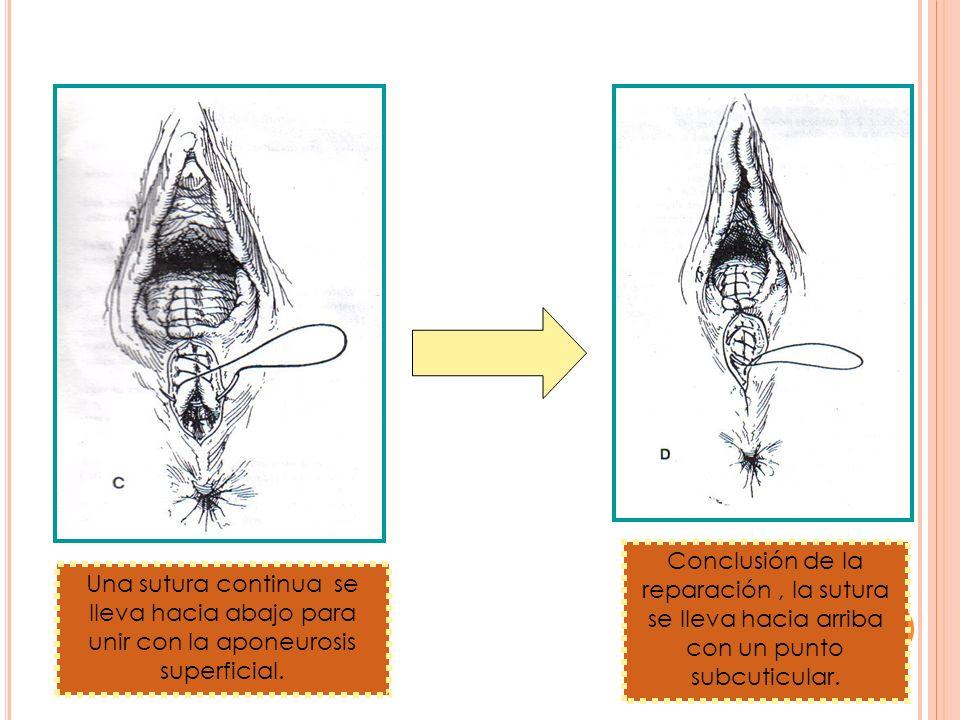 Conclusión de la reparación , la sutura se lleva hacia arriba con un punto subcuticular.
