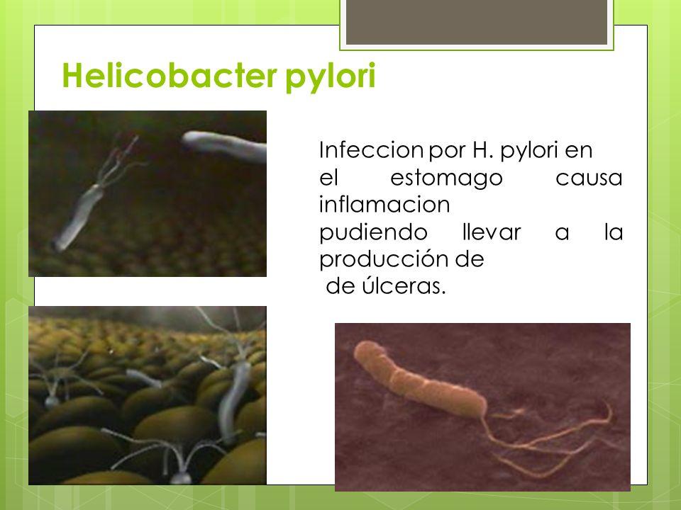 Helicobacter pylori Infeccion por H. pylori en