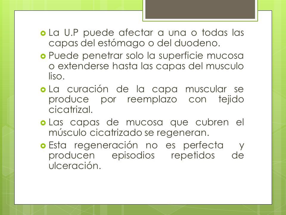 La U.P puede afectar a una o todas las capas del estómago o del duodeno.
