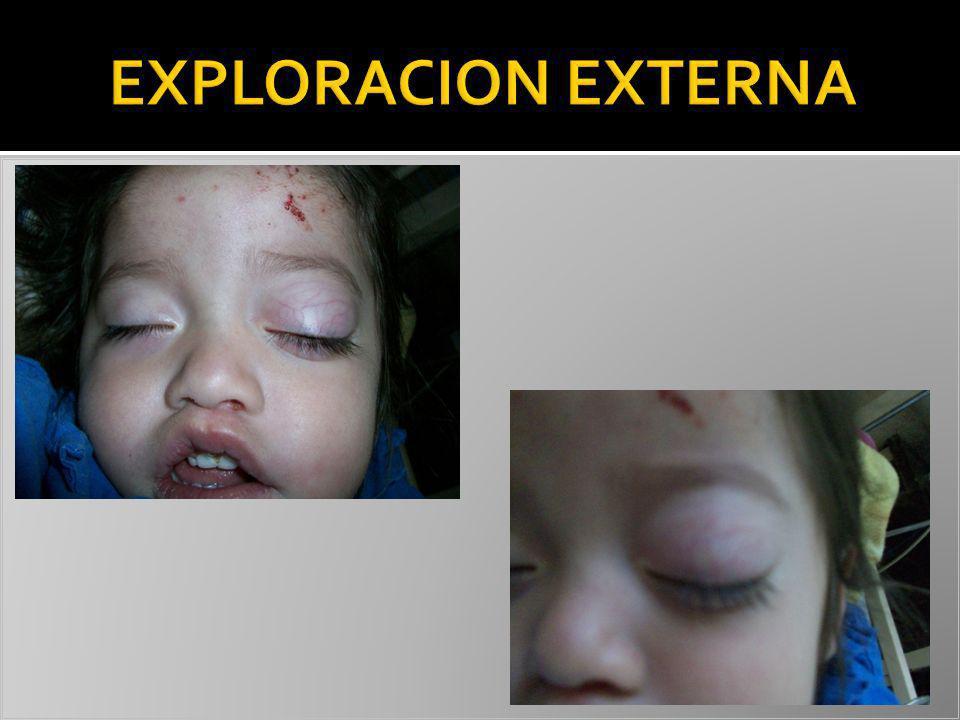 EXPLORACION EXTERNA CAMBIAR TITULO A EXPLORACION OFTALMOLOGICA