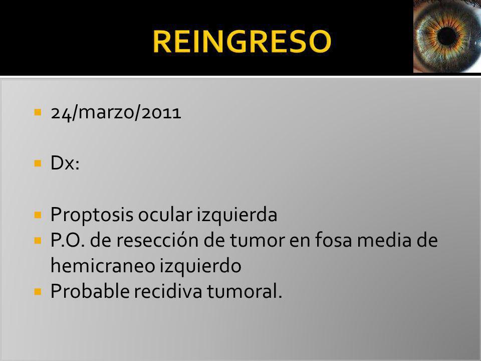 REINGRESO 24/marzo/2011 Dx: Proptosis ocular izquierda