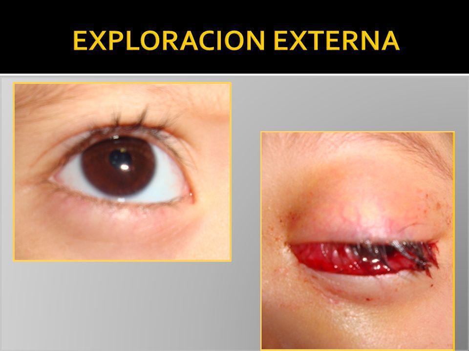 EXPLORACION EXTERNA HIPEREMIA BULBAR +++ QUEMOSIS PROTRUYENTE.