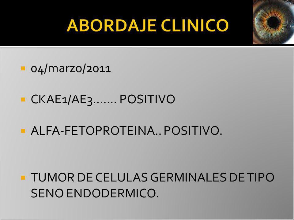 ABORDAJE CLINICO 04/marzo/2011 CKAE1/AE3……. POSITIVO