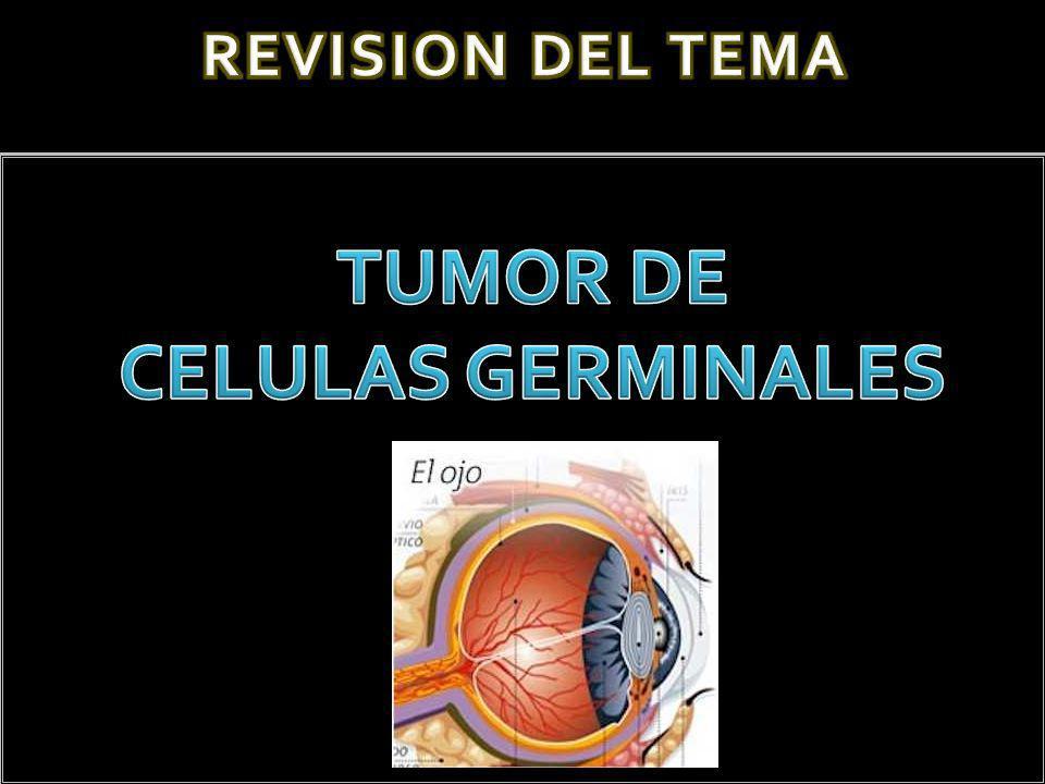 TUMOR DE CELULAS GERMINALES