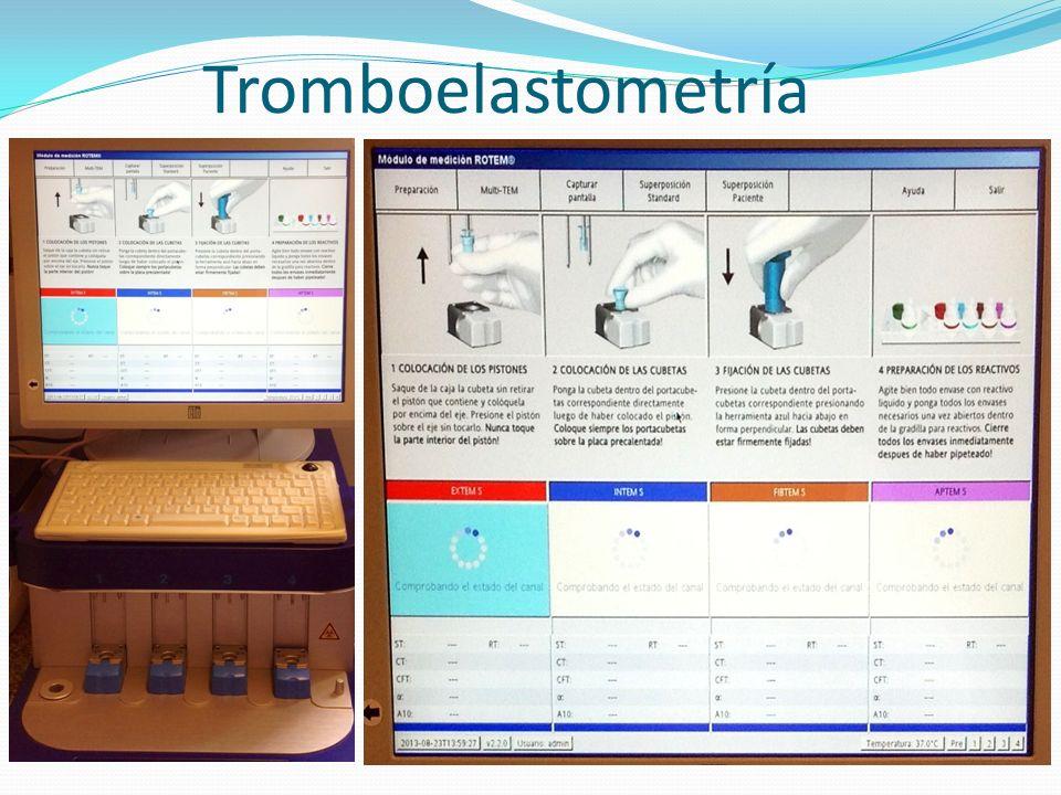 Tromboelastometría