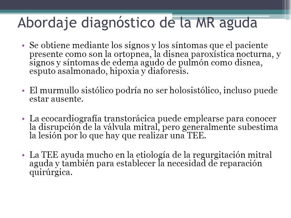 Abordaje diagnóstico de la MR aguda