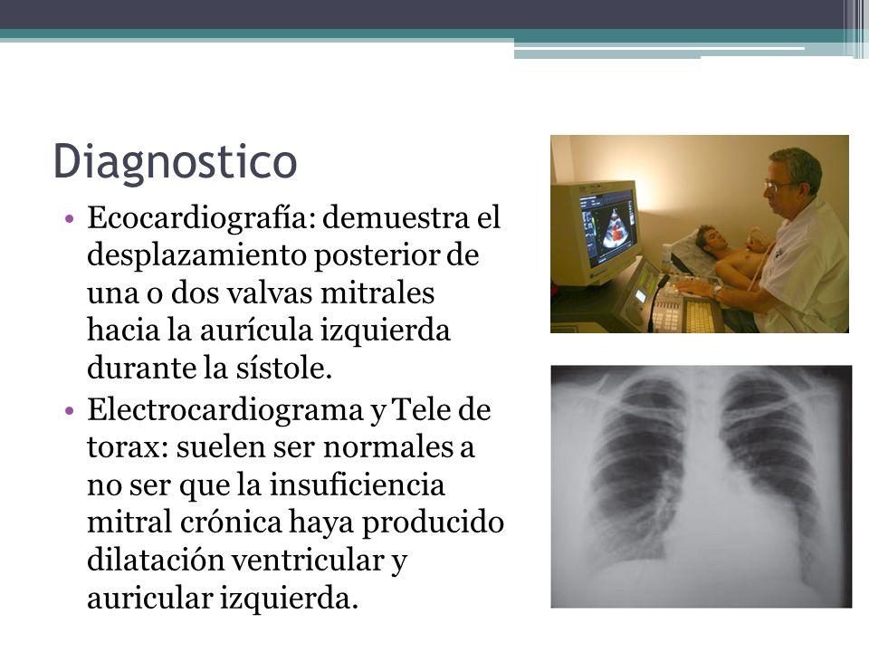 Diagnostico Ecocardiografía: demuestra el desplazamiento posterior de una o dos valvas mitrales hacia la aurícula izquierda durante la sístole.