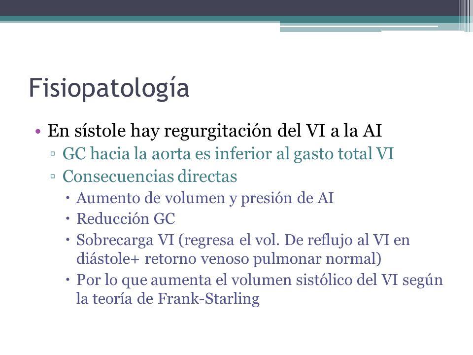 Fisiopatología En sístole hay regurgitación del VI a la AI