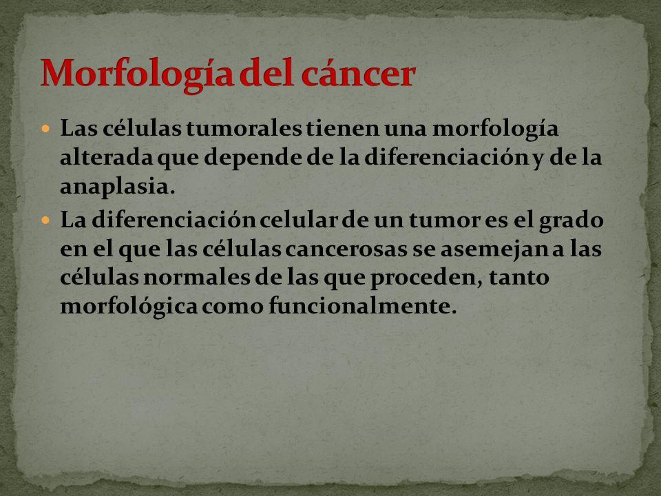 Morfología del cáncer Las células tumorales tienen una morfología alterada que depende de la diferenciación y de la anaplasia.