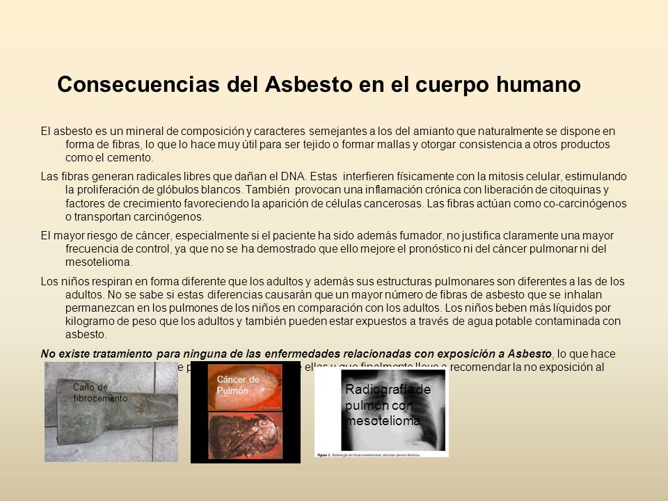 Consecuencias del Asbesto en el cuerpo humano