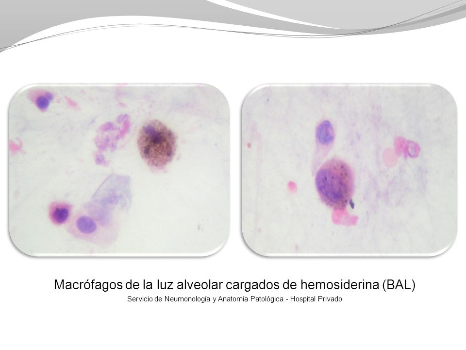 Macrófagos de la luz alveolar cargados de hemosiderina (BAL)