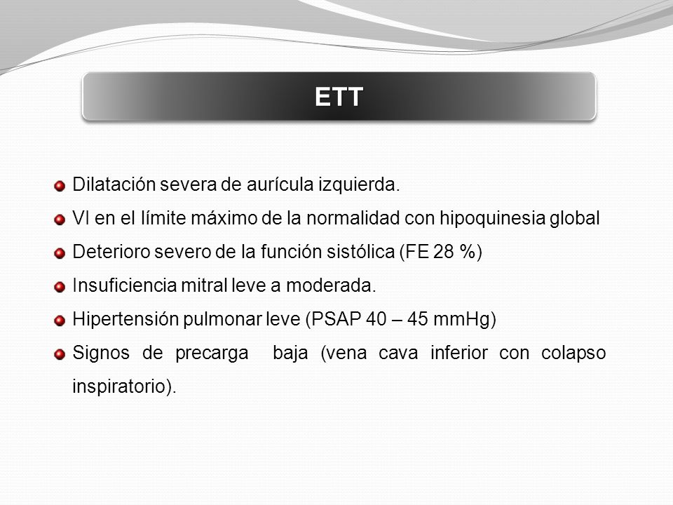 ETT Dilatación severa de aurícula izquierda.