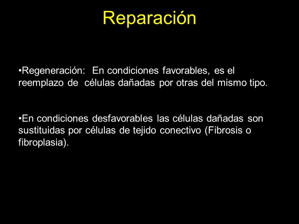 Reparación Regeneración: En condiciones favorables, es el reemplazo de células dañadas por otras del mismo tipo.