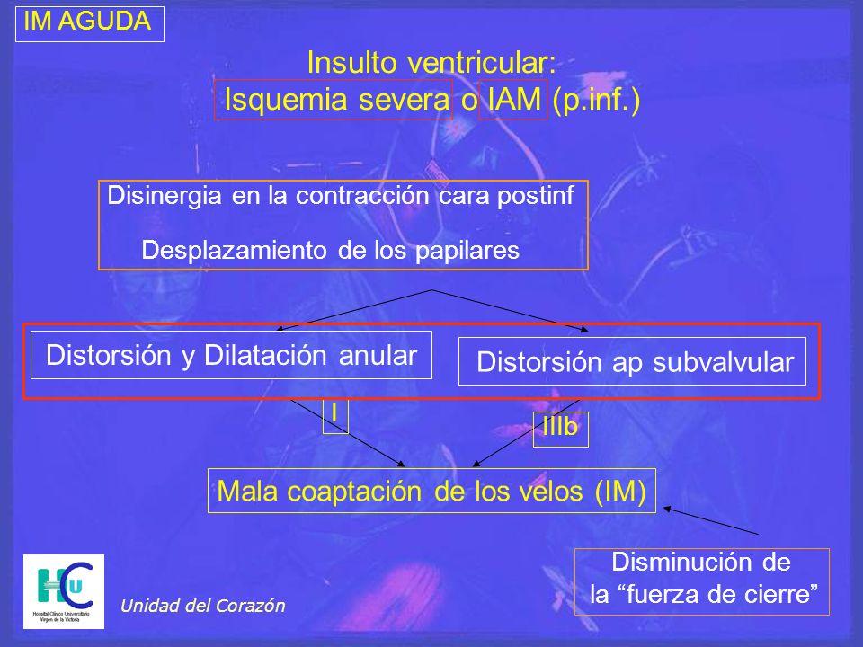 Isquemia severa o IAM (p.inf.)