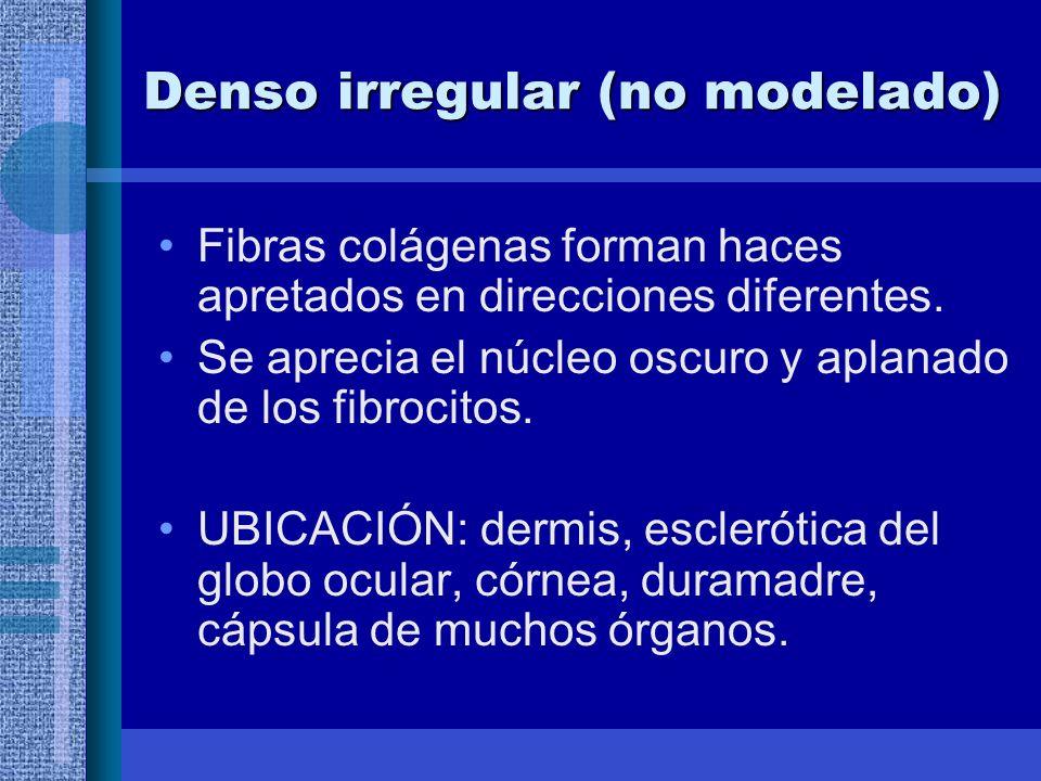 Denso irregular (no modelado)