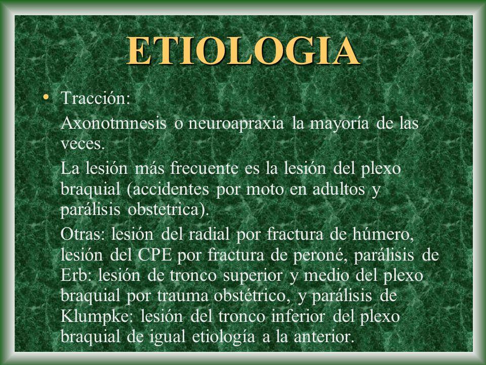 ETIOLOGIA Tracción: Axonotmnesis o neuroapraxia la mayoría de las veces.