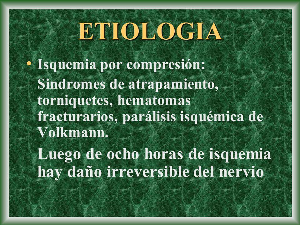 ETIOLOGIA Isquemia por compresión: