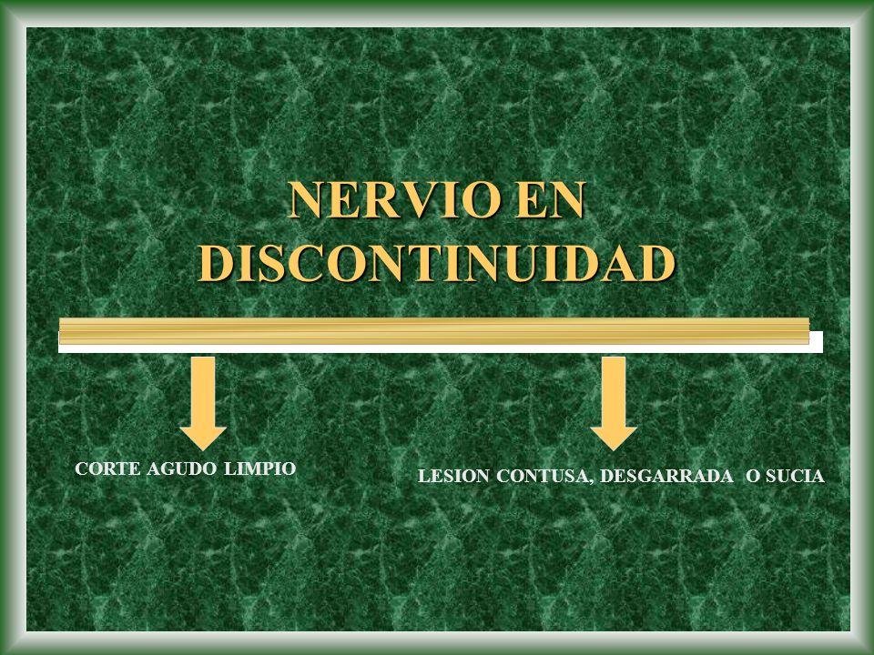 NERVIO EN DISCONTINUIDAD
