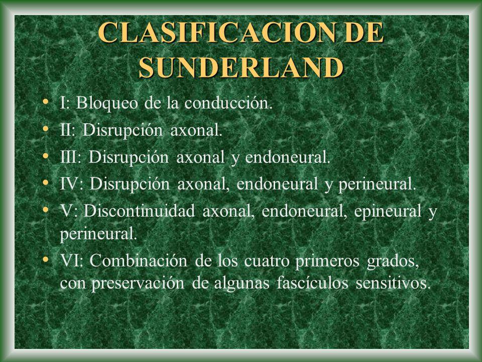 CLASIFICACION DE SUNDERLAND