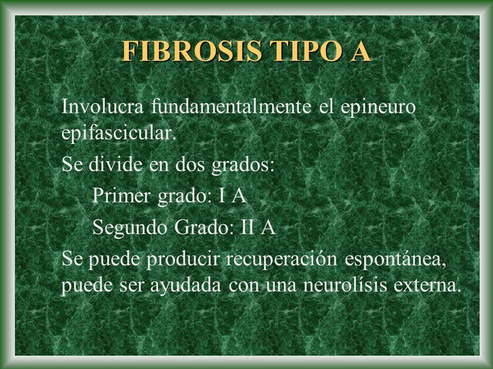 FIBROSIS TIPO A Involucra fundamentalmente el epineuro epifascicular.