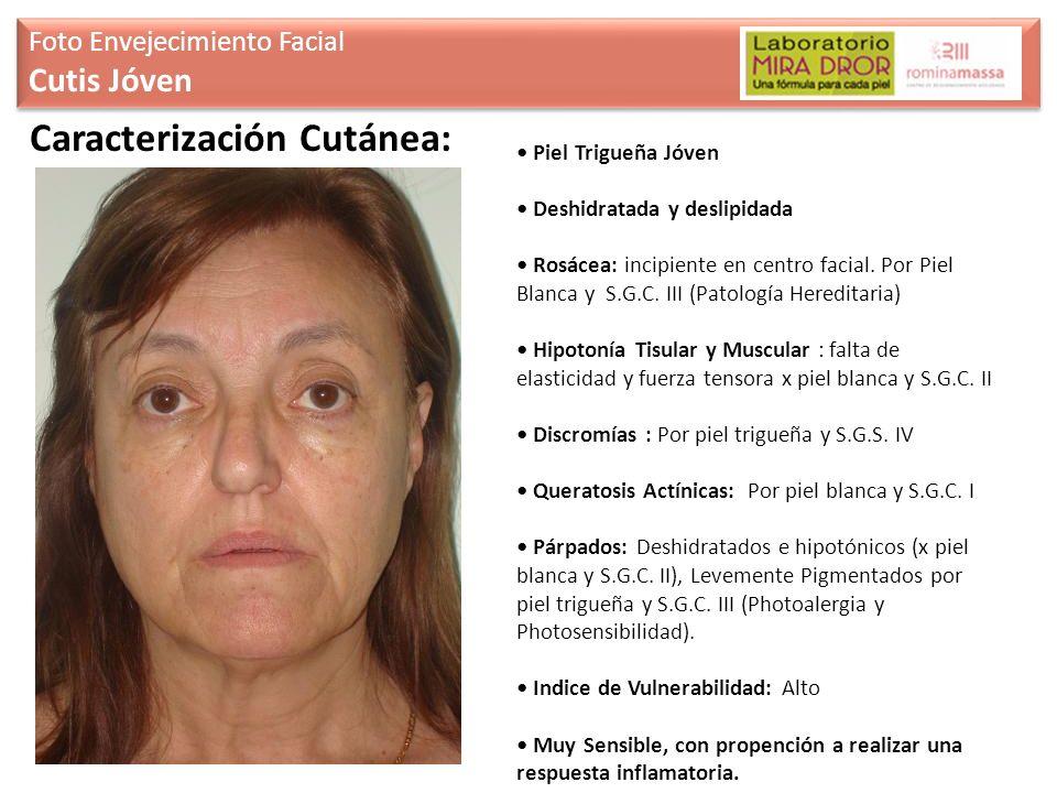Caracterización Cutánea:
