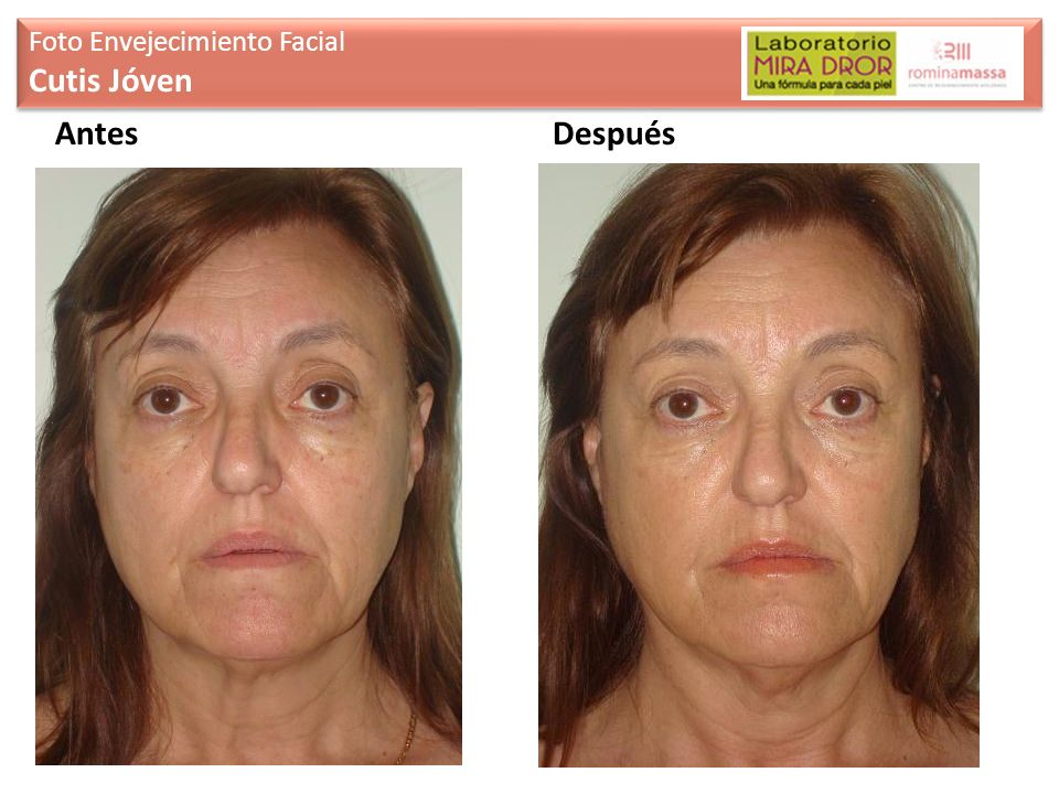 Foto Envejecimiento Facial