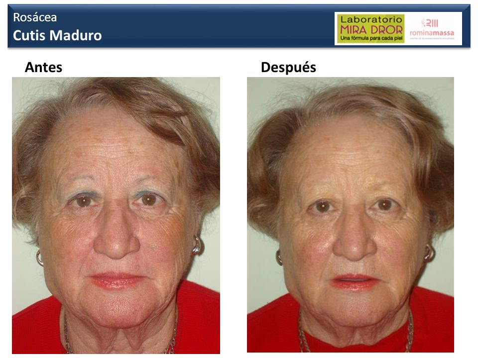 Rosácea Cutis Maduro Antes Después