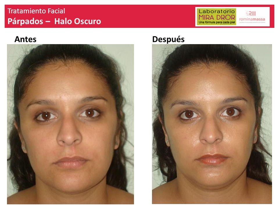 Tratamiento Facial Párpados – Halo Oscuro Antes Después