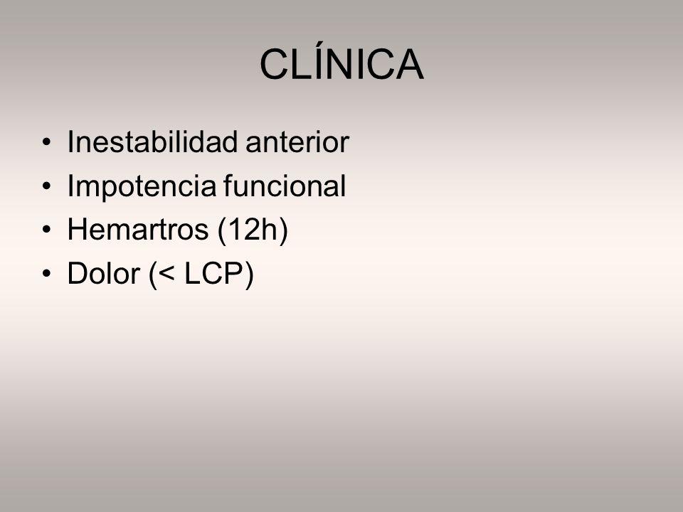 CLÍNICA Inestabilidad anterior Impotencia funcional Hemartros (12h)